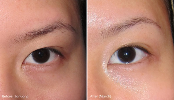 Eye-Cream-for-Dark-Circles